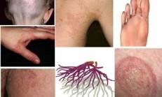 Blastomyces Mantar nedir