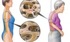 Osteoporoz Nasıl Olur?