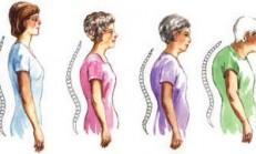 Osteoporozdan Korunma