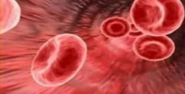 Wegener Granülomatozu ve Tedavi Yöntemleri