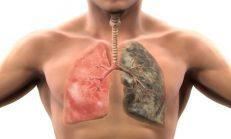 Sigara Kullananlar İçin Akciğerleri Temizleyip Kanseri Önleyen Harika Bir Tarif