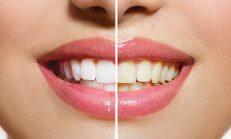 Bu Karışım Dişlerdeki Plağı 2 Dakika Gibi Kısa Bir Sürede Çıkartır
