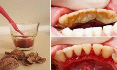 Basit Bir Yolla Diş Plağı Tartar ve Diş Eti Kanamasından Kurtulun