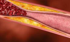 40 Günde Kolesterolden Doğal Yollarla Kurtulun