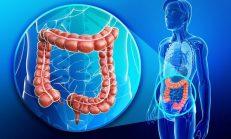 Zencefil Prostat ve Kolon Kanserini Yok Ediyor! Kemoterapiden Daha İyi ve Sağlıklı