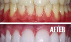 2 Dakikada Garantili Diş Beyazlatma! Sonuçlar Etkileyici