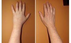 Kanser Belirtisi İlk Önce Ellerde Görülür Sağlığınız İçin Okumaya Değer!