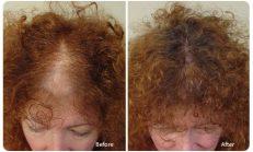 Saç Dökülmesi İçin Harika Bir Kür