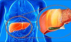 Karaciğer Neden Yağlanır Belirtileri Nelerdir ve Nasıl Tedavi Edilir?