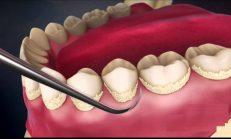 Diş Tartarını Nasıl Engellerim ? İşte size 7 altın kural