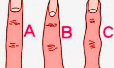 Sizin parmağınız bunlardan hangisi? Parmağınızın Şekli Karakterinizi Ele Veriyor !