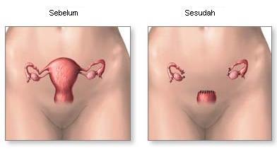 histerektomi2